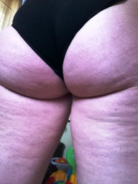Clelia Cellulite Before March 20 th 2014