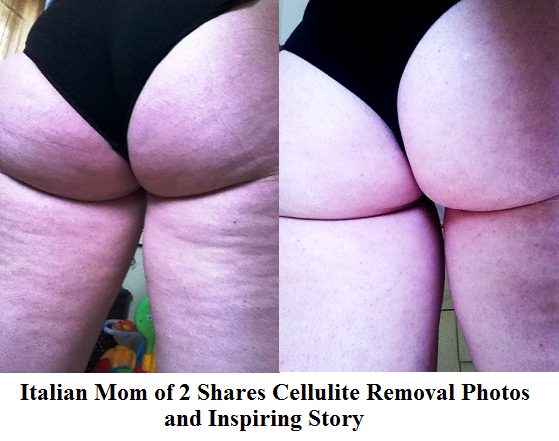 Italian Mom of 2 Shares Cellulite Removal Photos and Inspiring Story